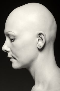 alopecia universalis woman - Google Search