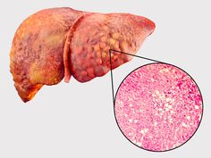 Hepagard: Natural Liver Support | Nutreance Quadrants Of The Abdomen, Heart Failure Symptoms, Step By Step Contouring, Mental Health Articles, Abdominal Bloating, Healthy Liver, Healthy Eating, Liver Disease, Disease Symptoms