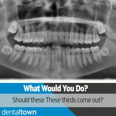 Looks like these lower thirds are laying sideways. Whats your opinion? #dentistry