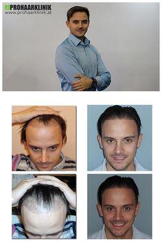 Haartransplantation für Manner - PROHAARKLINIK