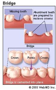 #DentalBridgesHouston Learn and understand about Dental Bridges - http://www.webmd.com/oral-health/guide/dental-health-bridges