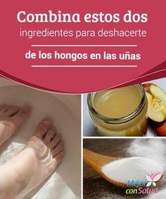 Combina estos dos ingredientes para deshacerte de los hongos en las uñas  Una tonalidad amarilla, la aparición de grietas y la comezón entre los dedos de los pies son síntomas evidentes de la infección por hongos en las uñas.