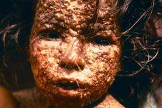 In 1980 werd de gevreesde ziekte pokken officieel uitgeroeid verklaard. Wetenschappers vrezen echter dat de levensgevaarlijke ziekte binnenkort terugkeert.