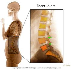 A Color X-Ray of the Lumbar Spine (Low Back) Facet Joints from a lateral (side) view. A novel, advanced visual tool to see and understand Anatomy, Disease, and Surgery created by Medical Media Images. Created by Medical Media Images. Ideal for Websites and Publications. http://www.medicalmediaimages.com/color-x-ray-lumbar-spine-facet-joints/906