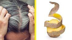 Get Rid of White Hair Using Potato Only! - Final Solution Get Rid of White Hair Using Potato Only! Curly Hair Care, Curly Hair Styles, Natural Hair Styles, Beauty Care, Beauty Hacks, Hair Beauty, Bad Hair, Hair Day, Bronze Hair