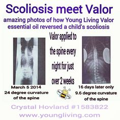 Young Living Essential Oils: Valor for Scoliosis