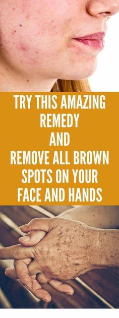 Ways to Remove Dark Spots From Confront Within 2 Days #BrownSpotsOnFace #RemediesForBrownSpotsOnFace #HowToRemoveBrownSpots #BrownSpotsOnMyFace #BrownSpotsOnSkin
