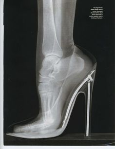 High Heels in an X-Ray