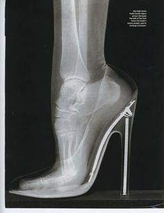 High Heels in an X-Ray