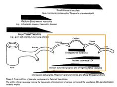 Classification of vasculitis