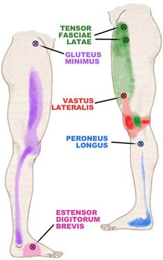 A Hip Muscle That Causes Knee and Ankle Pain. Repinned by SOS Inc. Resources http://pinterest.com/sostherapy.