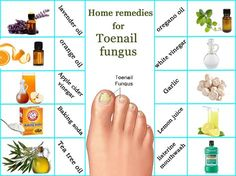 How to get rid of toe nail fungus? Best home remedies for toenail fungus.What causes toenail fungus? Vicks vaporub, vinegar, listerine for toenail infection