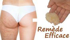 Comment se débarrasser de la cellulite ? - Astuces de grand mère