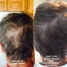 Monat results Monat is a Revolutionary way to grow hair Monat is full of natural ingredients Monat guarantees their products for 30 days. If interested in getting results like this, contact me at mwinn67@gmail.com or go to my website mallorywinn.mymonat.com