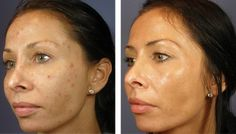 Acne Part IX: Chemical Peels - The fastest way Treatment.......
