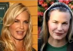 """""""Splash"""" actress Daryl Hannah, denies ever having plastic surgery and says it makes people """"look like Muppets."""" But her lips and cheeks look fuller. Bad Celebrity Plastic Surgery, Botched Plastic Surgery, Bad Plastic Surgeries, Plastic Surgery Gone Wrong, Plastic Surgery Photos, Celebrity Surgery, Celebrity Moms, Daryl Hannah, Worst Celebrities"""