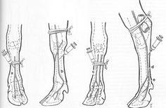 IV regional Anesthesia of limbs