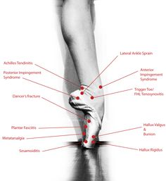 comparison to the rest of the body and so is very prone to many injuries. Here are some of the many injuries dancers experience that result from pointe shoes and the other rigors of ballet.