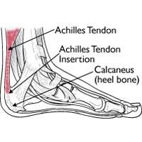 Achilles Tendinitis Medical Image ; achilles pain = poor glute control