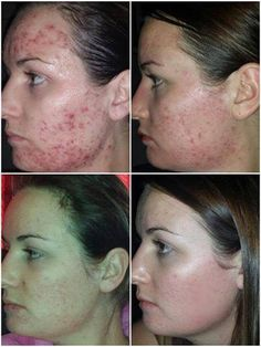 After trying everything - Kiera found Jeunesse's LUMINESCE skincare range & her self confidence. This is a cell rejuvenation system that has amazing results. For more information go to my website! Anti Aging Skin Care, Natural Skin Care, Acne Scar Removal, Pores, Acne Skin, Smooth Skin, Healthy Skin, Health And Beauty, Cellulite