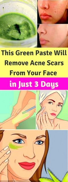 This Green Paste Will Remove Acne Scars From Your Face! # Skin Care scars natural treatments This Green Paste Will Remove Acne Scars From Your Face! Beauty Hacks For Teens, Acne Scar Removal, Natural Moisturizer, Skin Mask, Remove Acne, Acne Remedies, Natural Remedies, Health Remedies, New Skin