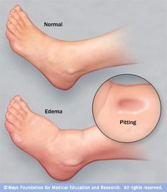 anasarca | Anasarca – receitas para tratamentos alternativos. Anasarca means generalized edema