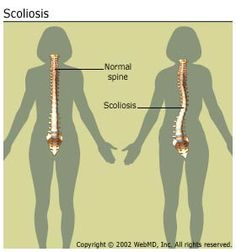 Scoliosis is a lateral (toward the side) curvature in the normally straight vertical line of the spine.