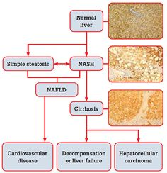 Figure 1. The natural history of non-alcoholic fatty liver disease