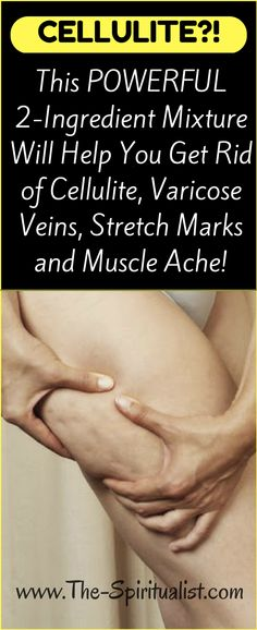 Natural Remedies Varicose Veins This POWERFUL Mixture Will Help You Get Rid of Cellulite, Varicose Veins, Stretch Marks and Muscle Ache! Varicose Vein Remedy, Varicose Veins, Health And Beauty, Health And Wellness, Health Fitness, Health Tips, Fitness Workouts, Natural Cures, Natural Health