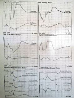 Figure 1: Electrophysiological study