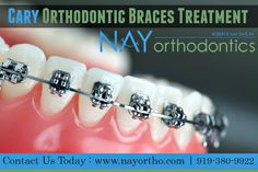 Orthodontic Braces Treatments in North Carolina