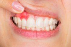 Ce este gingivita, cauzele si manifestarile ei, dar si cele mai eficiente tratamente naturiste pentru gingii inflamate. Alzheimer, Best Oral, Oral Hygiene, Oral Health, Health Problems, Health Fitness, Voici, Blog, Healthy Teeth