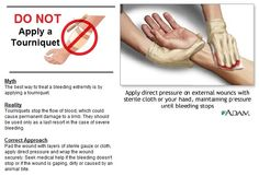 Tourniquets stop the flow of blood, which could cause permanent damage to a limb. They should be used only as a last resort in the case of severe bleeding.