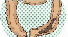 """Elimina el exceso de heces en el intestino con solo 2 ingredientes para que comienze a bajar de peso."""" - https://www.sorihe.com/blog/elimina-el-exceso-de-heces-en-el-intestino-con-solo-2-ingredientes-para-que-comienze-a-bajar-de-peso/"""