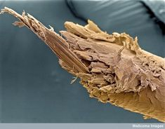 Split ends of a human hair.   Image: Liz Hirst, Wellcome Images