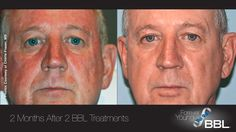 Forever Young BBL™ | Sciton  http://foreveryoungbbl.com/    At Skin Savvy RX in Tampa we have the revolutionary Sciton Laser www.skinsavvyrx.com (813)870-9000