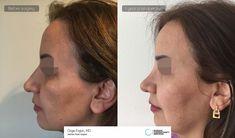 Rhinoplasty surgery Ozge ERGUN, MD ®  https://ozgeergun.com.tr/en/ 📲 WhatsApp: +90 538 081 4372 #PlasticSurgery #PlasticSurgeryturkey #NoseJob #nosejobturkey #Rhinoplasty #rhinoplastyturkey #rhinoplastyistanbul #rinoplastia #rinoplastiaestetica #Nasenkorrektur #Aesthetics #beauty #estética #cirugíaplástica #estetica #plastischeChirurgie #chirurgieplastique  #鼻形成術 #整形手术#جراحةالتجميل #næsekorrektion #ринопластика #realself  #Rhinoplastie #Rinoplastica #Näsplastik #näsplastikistanbul