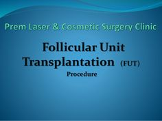 In case, you are looking for an effective and permanent solution for your hair loss problem, then Follicle Unit Transplantation (FUT) can come to your immense aid. It is an advanced technique used for hair restoration where smaller hair follicles are plucked from the donor area and then transferred into the recipient area. The results are natural and permanent.http://goo.gl/WJnfzE