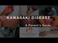 Kawasaki Disease: A Parents Guide Kawasaki Disease, Health Fair, Childrens Hospital, School Projects, Aspirin, Parents, Medical, Clinic, Protein