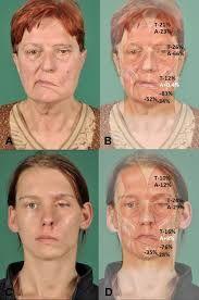 facial denervation atrophy imaging - Google Search Facial, Google Search, Image, Facial Care, Face Care, Face