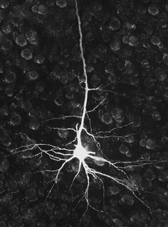 "neurosciencestuff:  Researchers turn one form of neuron into another in the brain A new finding by Harvard stem cell biologists turns one of the basics of neurobiology on its head – demonstrating that it is possible to turn one type of already differentiated neuron into another within the brain. The discovery by Paola Arlotta and Caroline Rouaux ""tells you that maybe the brain is not as immutable as we always thought, because at least during an early window of time one can reprogram the…"