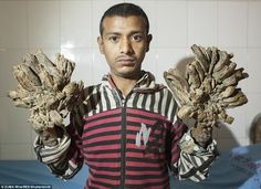 Strange men become plant roots http://www.mnewstoday.tk/2016/02/strange-men-become-plant-roots.html