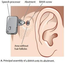 BAHA Implantation. The Baha is a surgically implantable system for treatment of hearing loss that works through direct bone conduction