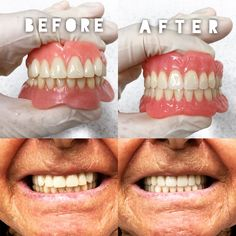How to get used to eating with new dentures dentaldentures patient cant stop smiling another happy client if youve had poorly made dentures contact us today 9317 7777 we promise to take solutioingenieria Image collections