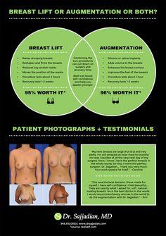 Breast Lift or Augmentation or Both?