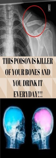 THIS POISON IS KILLER OF YOUR BONES AND YOU DRINK IT EVERYDAY!!!