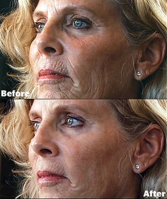 Instantly Ageless - before and after - amazing!