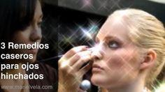 3 remedios caseros para ojos hinchados