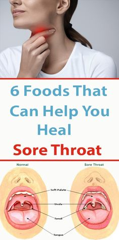 6 foods that can help cure a sore throat - Sportcom.us - 6 foods that can help cure sore throats – Sportcom. Help Sore Throat, Drinks For Sore Throat, Health Remedies, Home Remedies, Herbal Remedies, Health Tips, Health Care, Soft Palate, How To Dry Sage