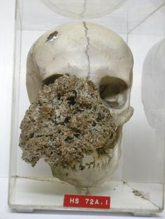 A female skull dating from 1829 with the bony skeleton of a large facial tumour (possibly caused by neurofibromatosis) involving the right side of the face. The tumour arose in the right antrum, and during five years' growth destroyed the right malar bone, the palate, and the maxilla. Specimen from the Hunterian Museum of the Royal College of Surgeons, London. cc